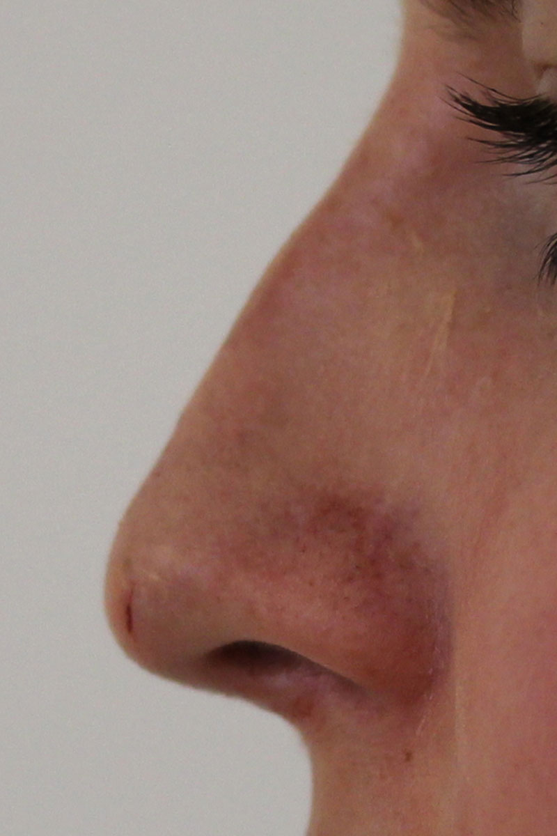 Gerade Nase nach Fillerkorrektur