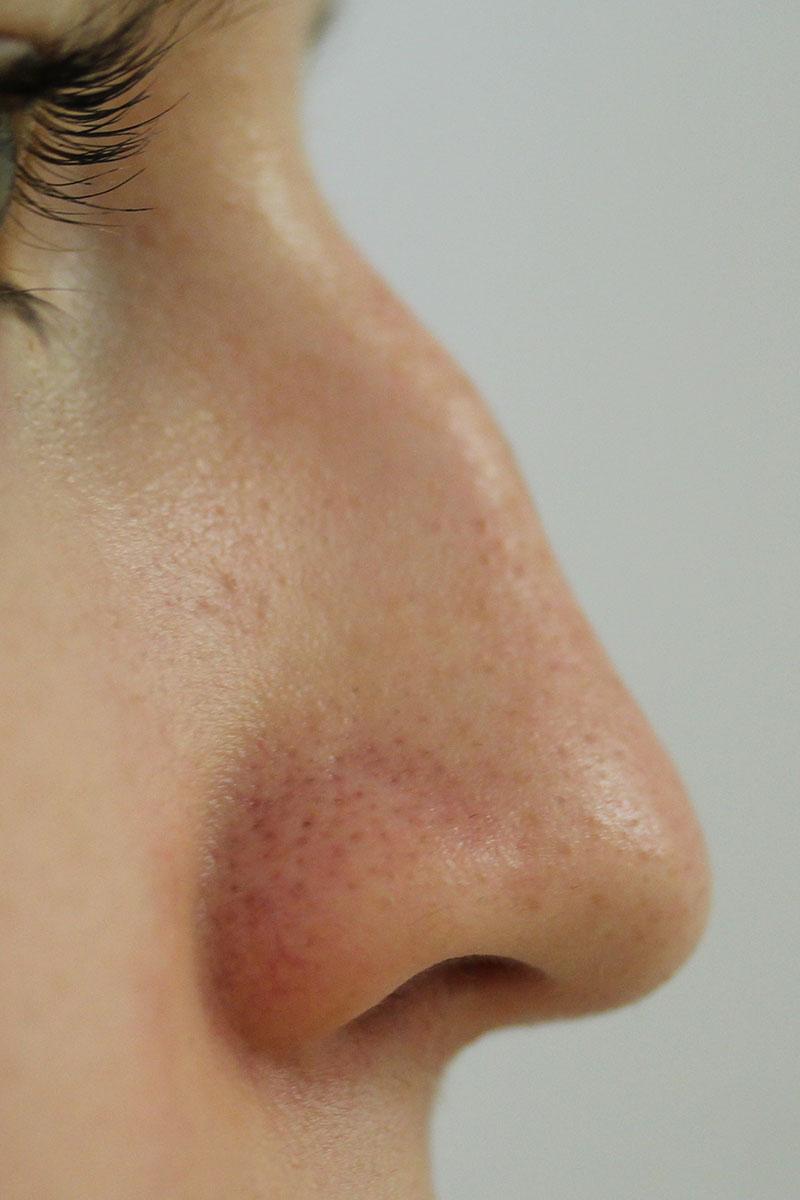 Nase vor Korrektur ohne Operation