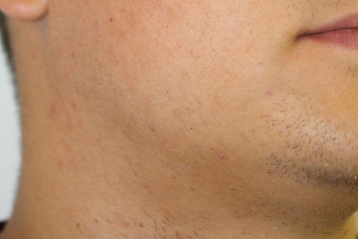 Gesicht ohne Akne