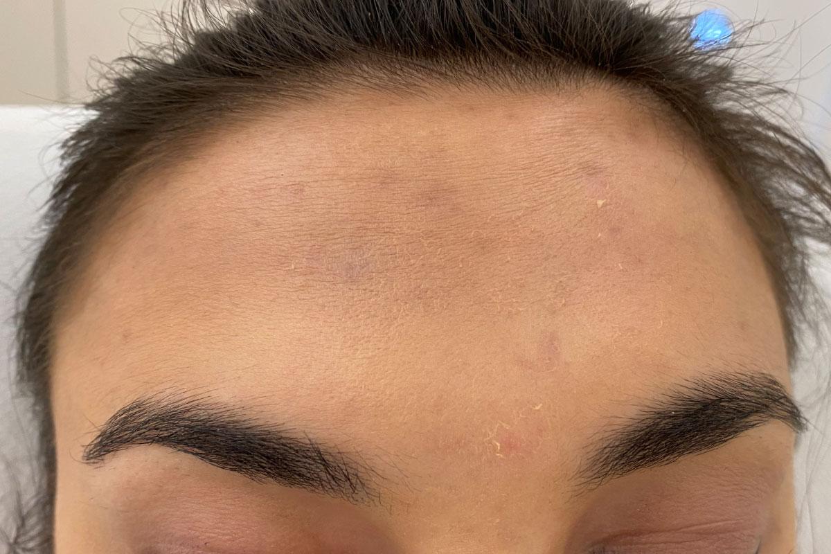 Stirn ohne Falten