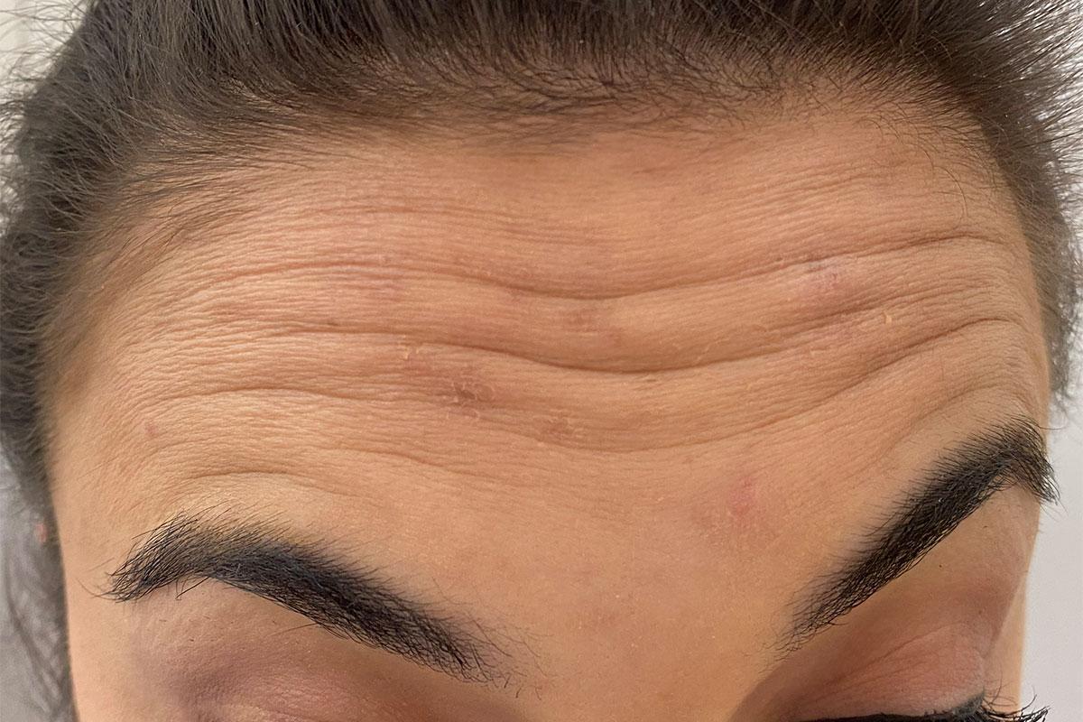 Stirn mit Falten