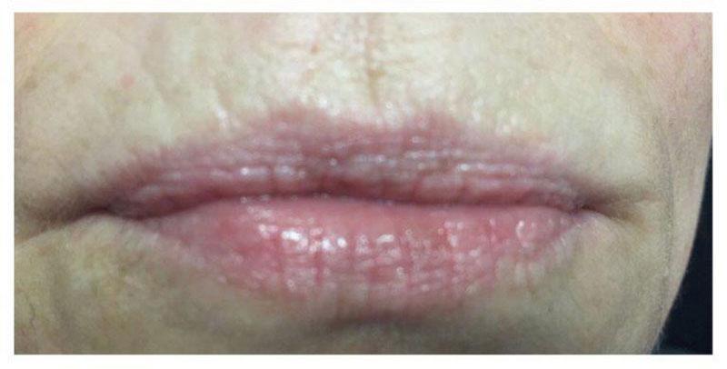 CO2-Laser-Behandlung Lippen Nachher