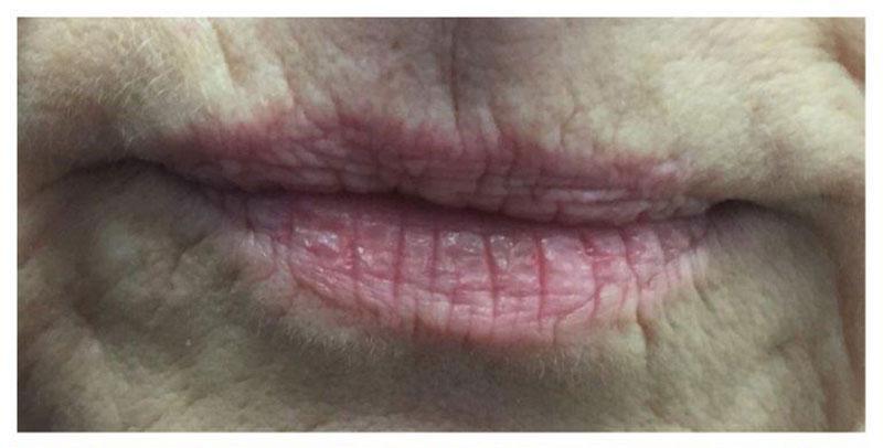 CO2-Laser-Behandlung Lippen Vorher