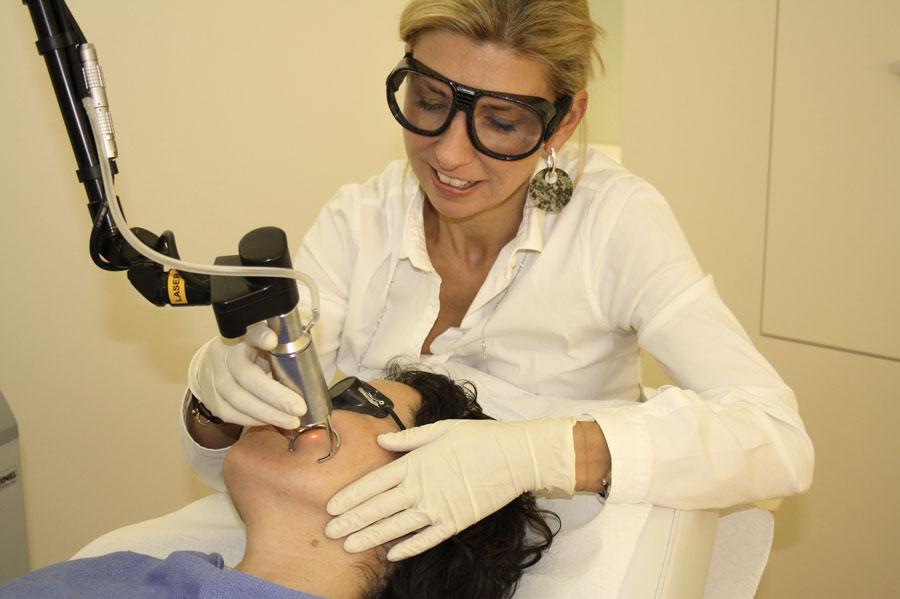 Gesichtsbehandlung mit CO2-Laser