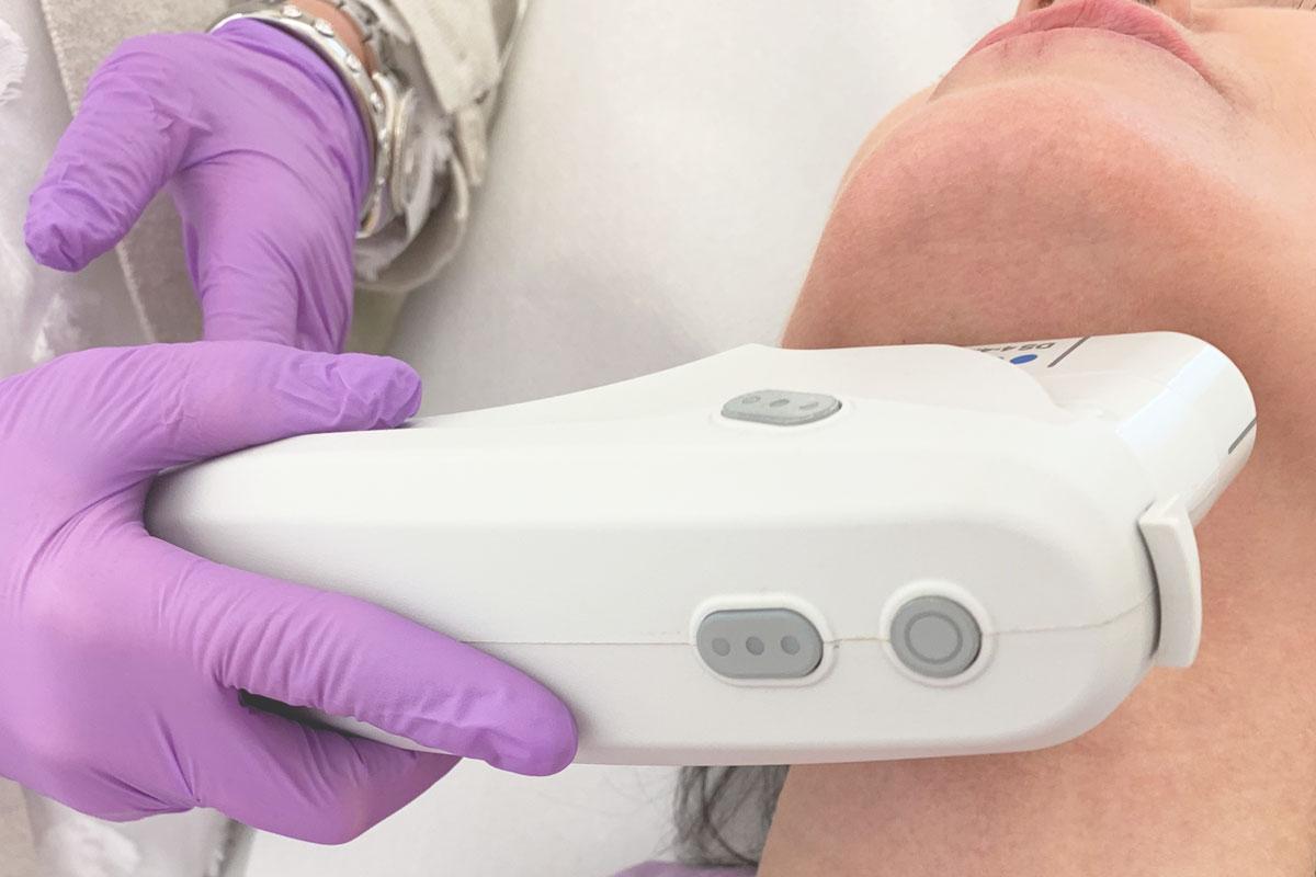Doppelkinn entfernen mit Ultherapy bei Dr. Wallentin Wien