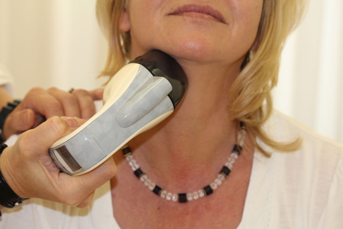 Doppelkinn entfernen mit VelaShape III bei Dr. Wallentin Wien