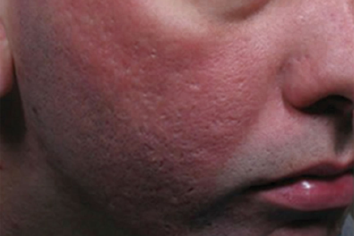 Patient nach der Behandlung der Aknenarben mit CO2-Laser
