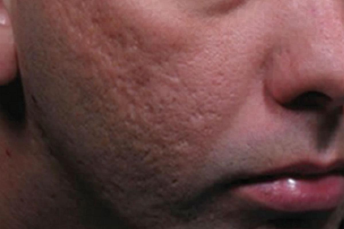 Patient vor der Behandlung der Aknenarben mit CO2-Laser