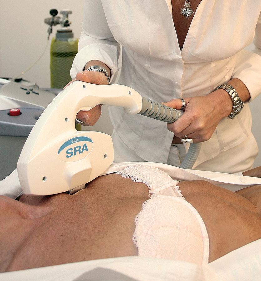 Behandlung von Pigmentflecken mit eMax SRA