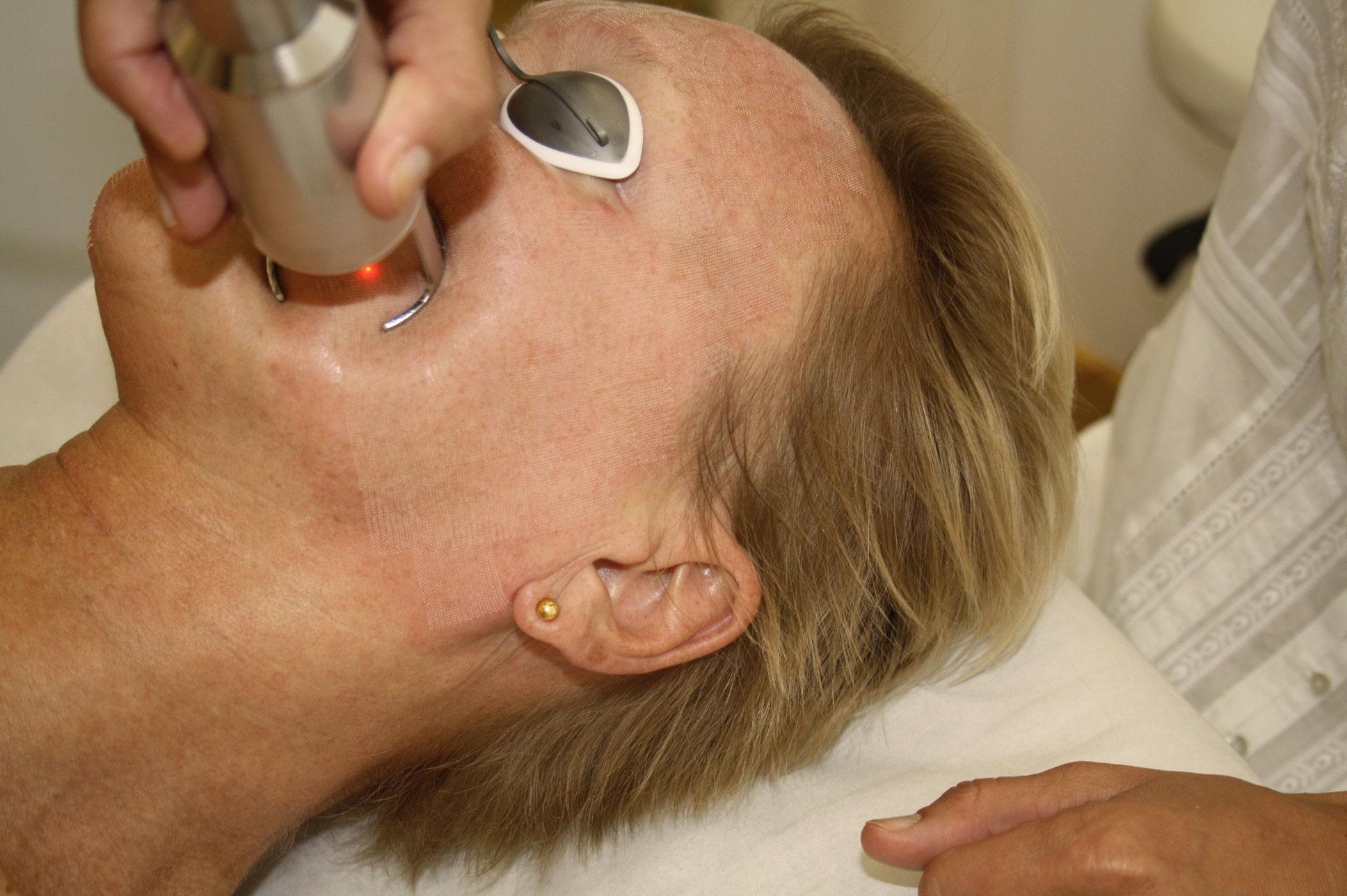 Falten reduzieren mit Fractional Laser bei Doktor Wallentin