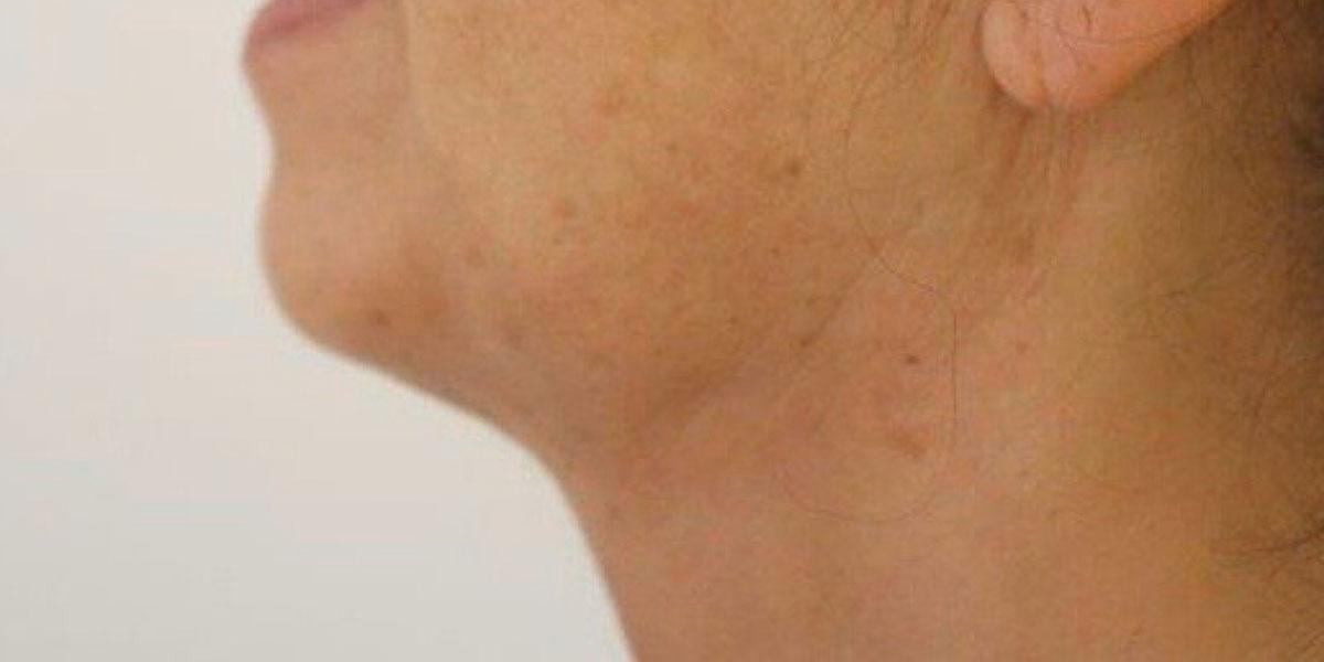 Vorher-Nachher: Hals nach der Fettabsaugung bei Dr. Wallentin