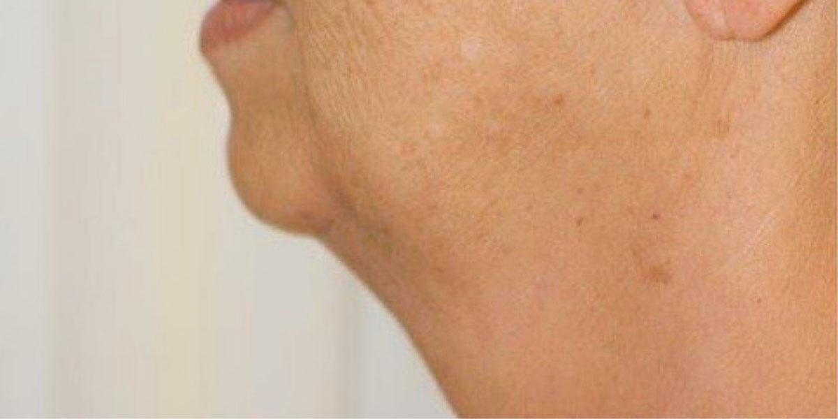 Vorher-Nachher: Hals vor der Fettabsaugung bei Dr. Wallentin