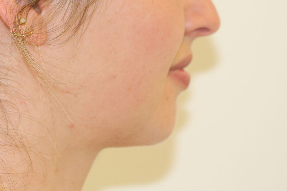 Kinn nach Fettabsaugung und Lipofilling bei Dr. Wallentin