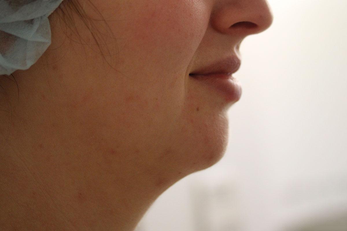 Kinn vor Fettabsaugung und Lipofilling bei Dr. Wallentin