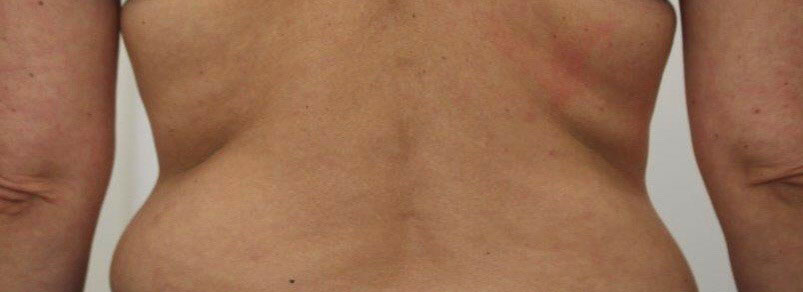 Vorher-Nachher: Patient vor Fett-weg-Spritze und VelaShape III bei Dr. Wallentin