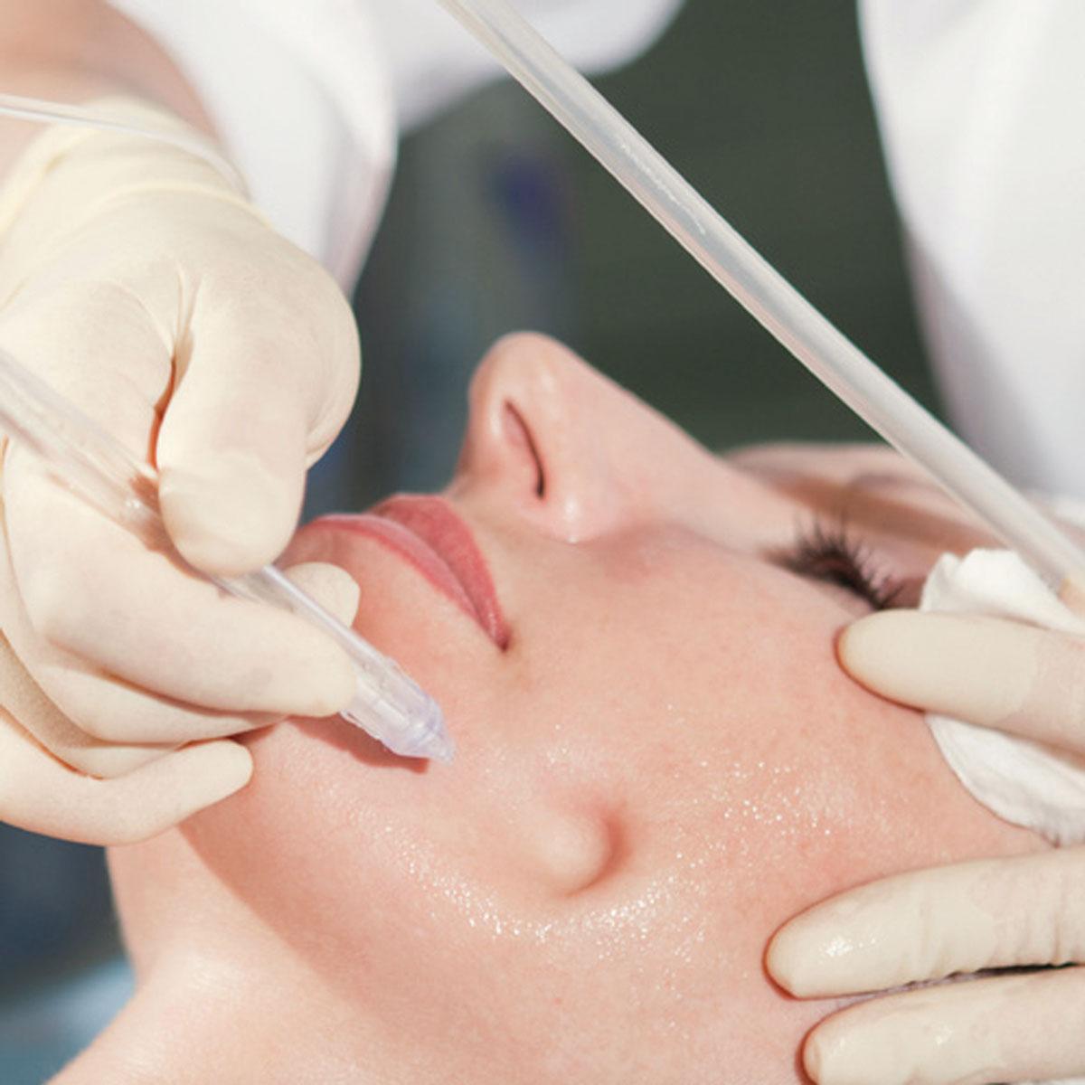 JetPeel Behandlung Gesicht bei Dr. Wallentin Wien