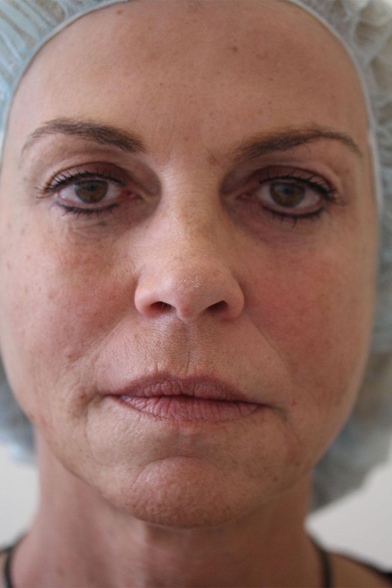 Vorher-Nachher: Gesicht nach Liquid Lifting und Eigenfettunterspritzung bei Dr. Wallentin
