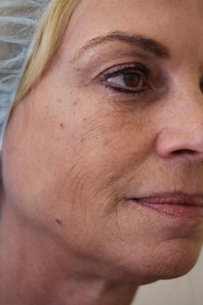 Vorher-Nachher: Gesicht vor Liquid Lifting und Eigenfettunterspritzung bei Dr. Wallentin