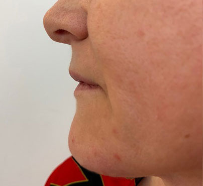 Vorher-Nachher: Nasolabialfalte nach Lipofilling bei Dr. Wallentin