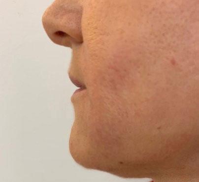 Vorher-Nachher: Nasolabialfalte vor Lipofilling bei Dr. Wallentin