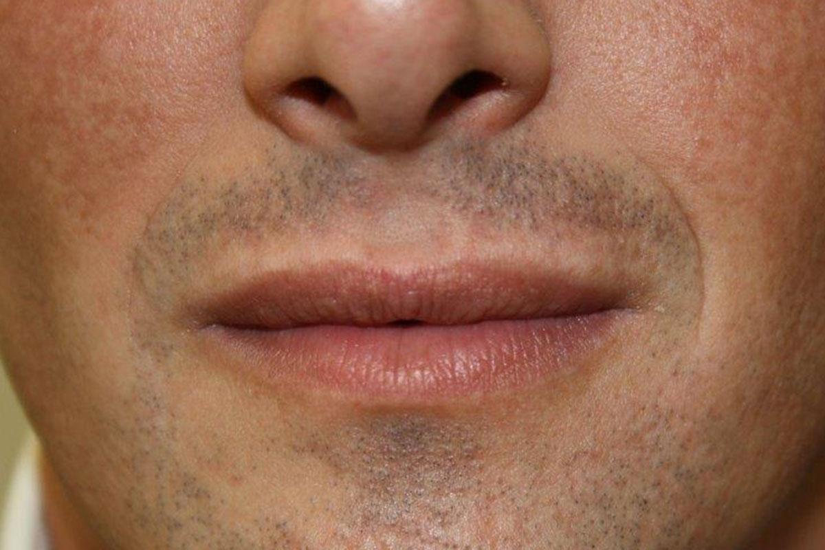 Voluminösere Männerlippen nach Hyaluronsäureunterspritzung