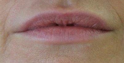 Lippen nach der Unterspritzung mit Hyaluronsäure bei Dr. Wallentin
