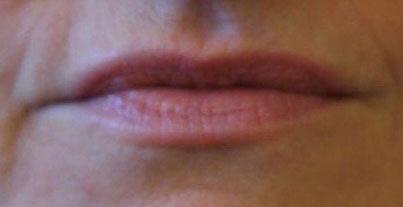Lippen vor der Unterspritzung mit Hyaluronsäure bei Dr. Wallentin