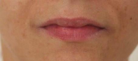 Lippen vor der Unterspritzung