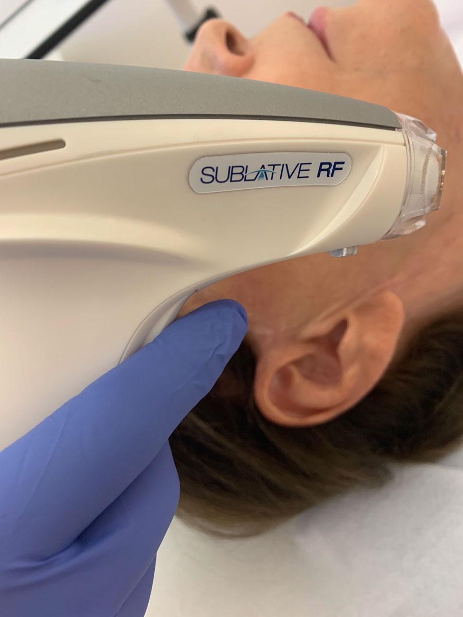 Matrix RF Hautstraffung bei Dr. Wallentin Wien