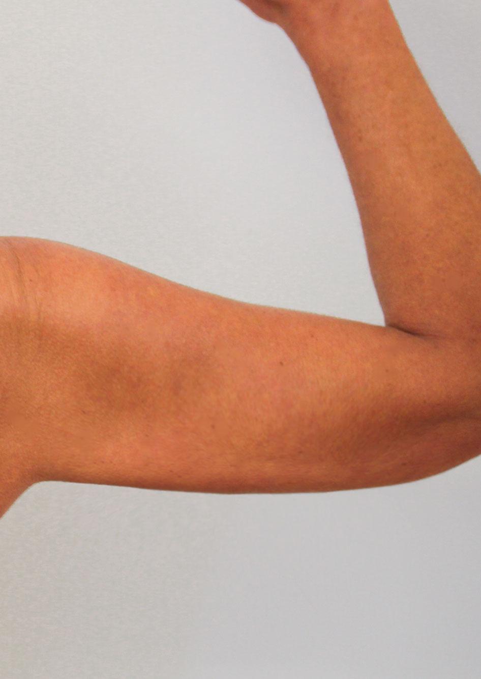 Gestraffter Oberarm nach der Oberarmstraffung