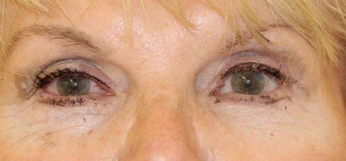 Augen nach der transkonjunktivalen Blepharoplastik