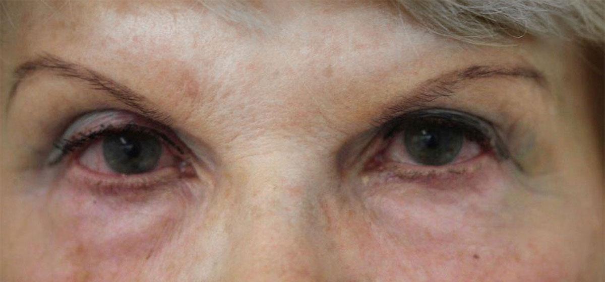 Augen vor der transkonjunktivalen Blepharoplastik