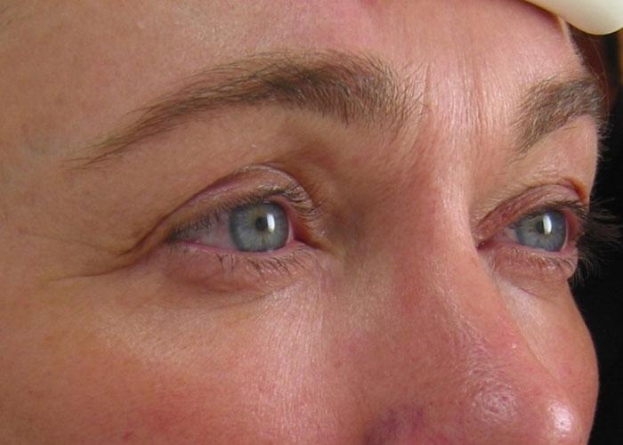 Ultherapy Augen Nachher Dr. Wallentin Wien