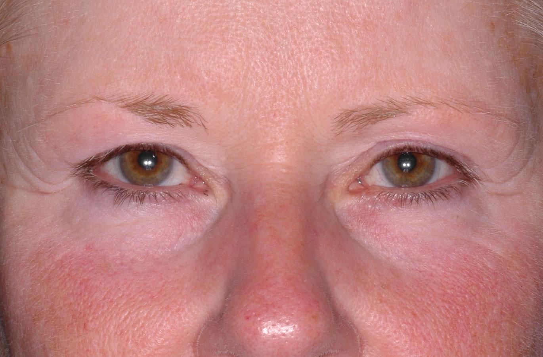 Ultherapy Augen Schlupflider Vorher Dr. Wallentin Wien