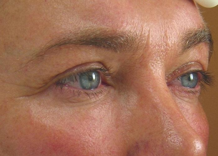 Ultherapy Augen Vorher Dr. Wallentin Wien