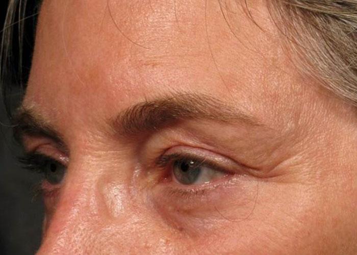 Ultherapy Augenlider Vorher Dr. Wallentin Wien