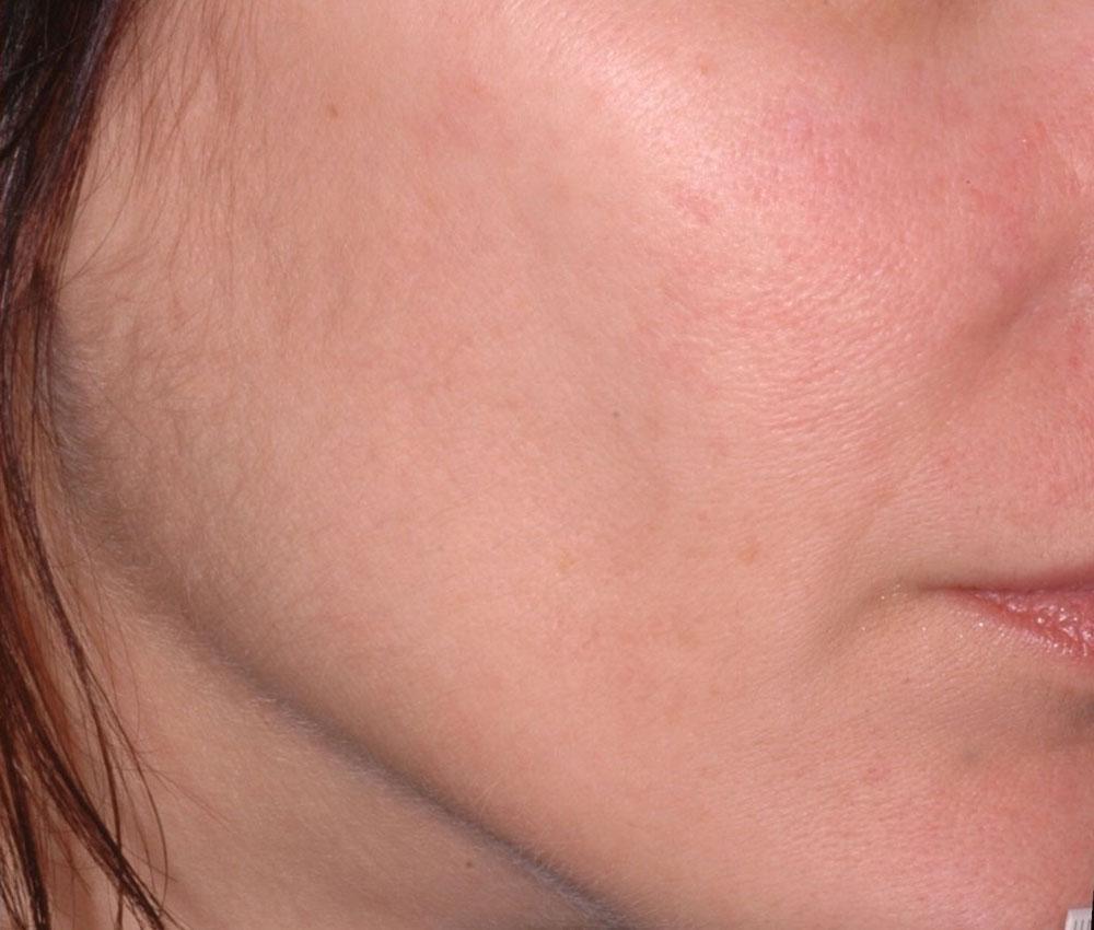 Ultherapy Gesichtskontur Nachher Dr. Wallentin Wien