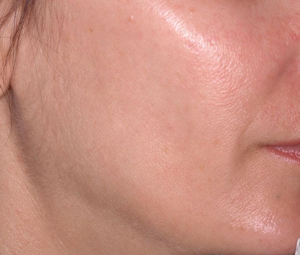 Ultherapy Gesichtskontur Vorher Dr. Wallentin Wien