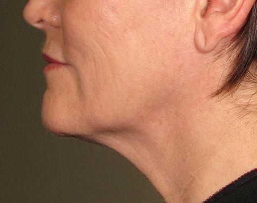 Ultherapy Hals Nachher Dr. Wallentin Wien