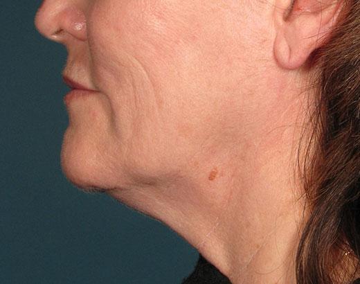 Ultherapy Hals Vorher Dr. Wallentin Wien