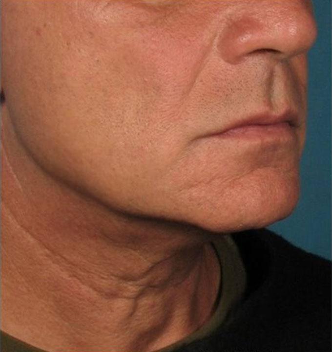 Ultherapy Halsstraffung Nachher Dr. Wallentin Wien