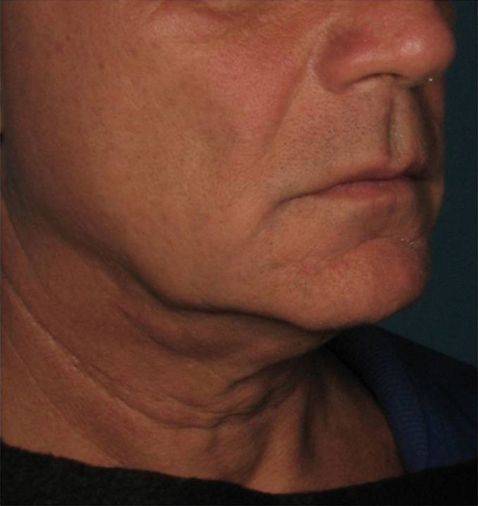 Ultherapy Halsstraffung Vorher Dr. Wallentin Wien