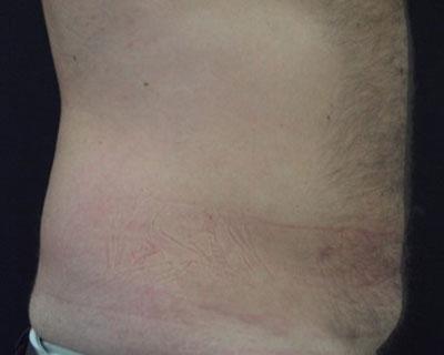 Ultrashape Power Bauch Mann Nachher Dr. Wallentin Wien