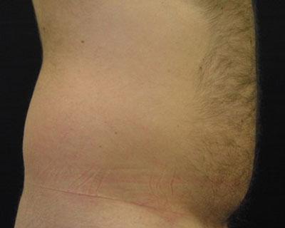 Ultrashape Power Bauch Mann Vorher Dr. Wallentin Wien