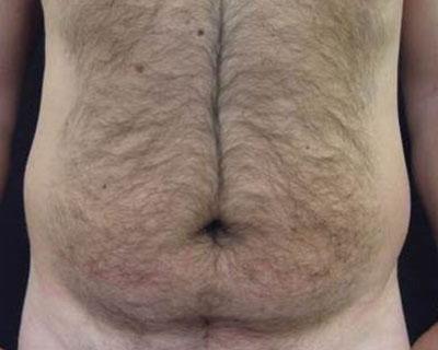 Ultrashape Power Mann Bauch Vorher Dr. Wallentin Wien