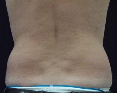 Ultrashape Power Mann Rücken Nachher Dr. Wallentin Wien