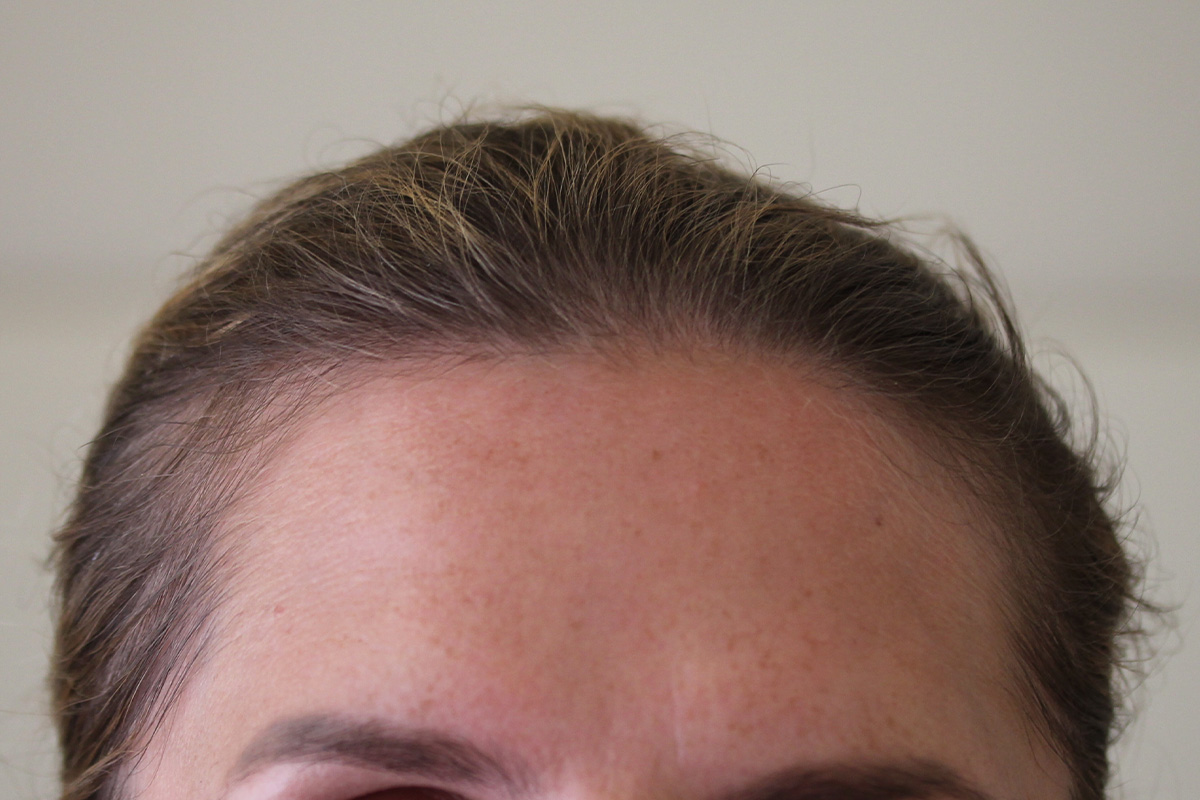 Stirn Frau