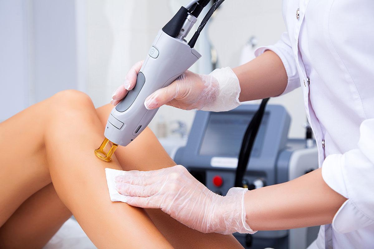 Laser Haarentfernung Beine bei Dr. Wallentin in Wien