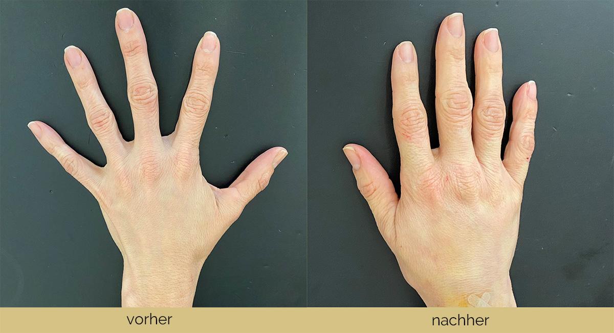Vorher-Nachher-Bilder der Nanofettbehandlung bei Dr. Wallentin
