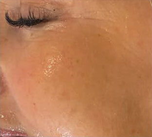 Augenpartie nach Seidenfadenlifting
